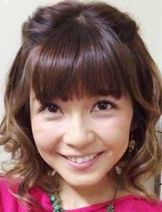 AAA 宇野実彩子 前歯の写真