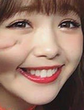藤田ニコル 差し歯