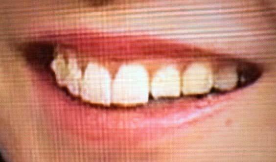 水戸なつめ 銀歯