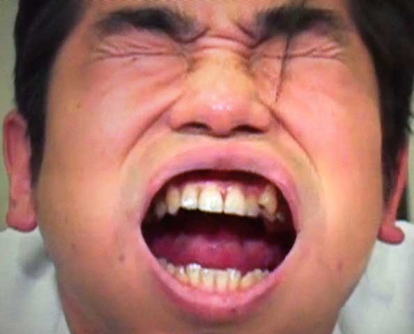 浜谷健司 前歯の写真