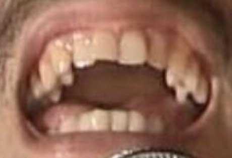 平井堅 前歯の写真