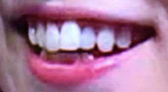 石川恋 前歯の写真