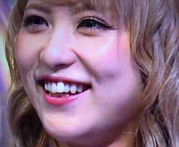 石川恋 前歯