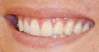 上重聡アナウンサー 前歯の写真