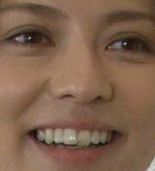 香里奈 前歯の写真