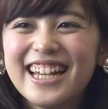 久慈暁子 笑顔と歯茎