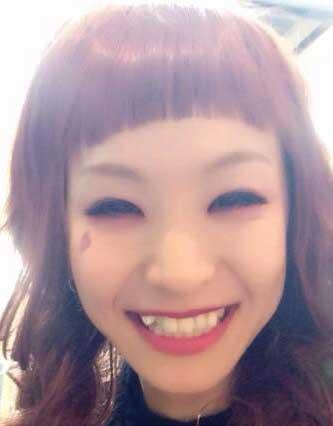 LiSA 八重歯