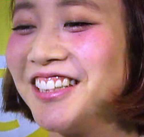 水戸なつめ 歯茎