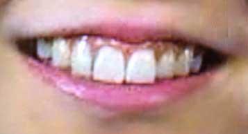 水戸なつめ 前歯の写真