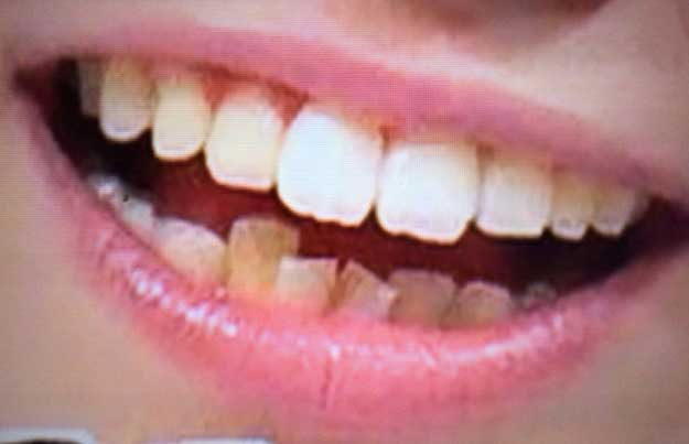 中島愛里 Vの字 下の歯並び