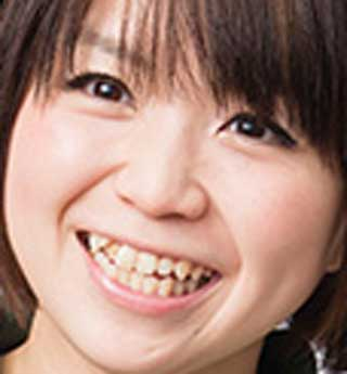 野水伊織 前歯の写真