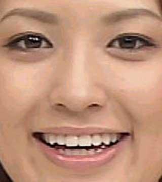 小熊美香 前歯の写真