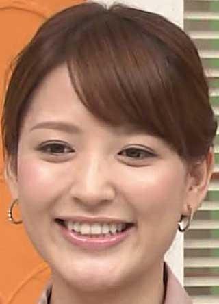小熊美香アナ 前歯