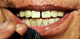 ロドリゲスの前歯の写真