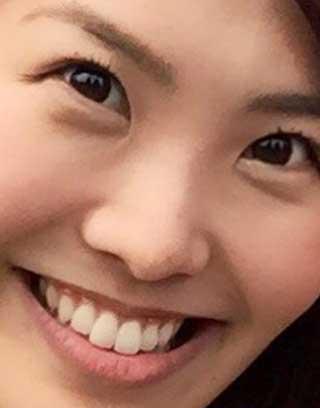 渋佐和佳奈 前歯の写真