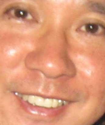 田中裕二 前歯の写真