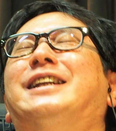 田中裕二 出っ歯