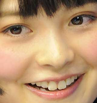 上坂すみれ 前歯の写真