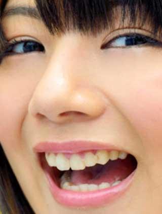 明坂聡美 歯