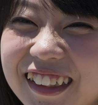 青山ひかる 前歯の写真