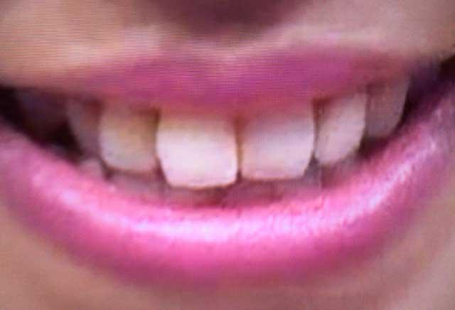 朝比奈彩 前歯の写真