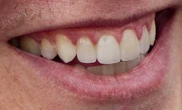 イーロン・マスク 前歯の写真 差し歯