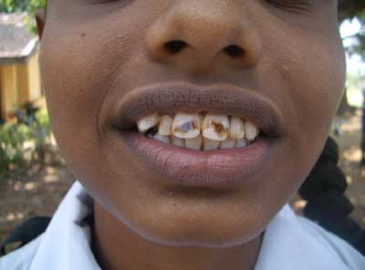 歯牙フッ素症