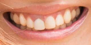 依布サラサ 前歯の写真