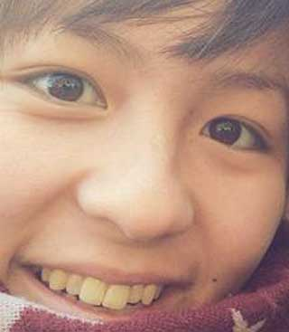岩渕真奈 前歯の写真