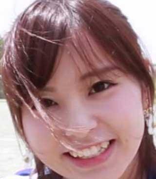 角谷暁子さんの前歯の写真