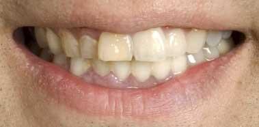 軽部真一アナの前歯の写真
