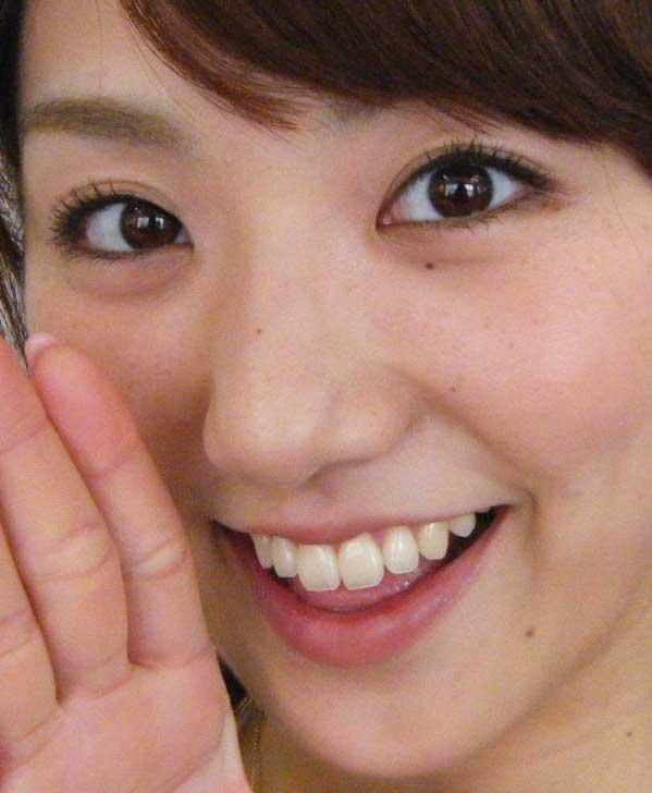 松村未央 歯
