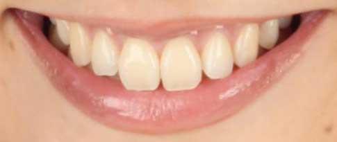 松村未央アナウンサー 前歯の写真