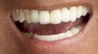 松崎しげる 前歯の写真 インプラント