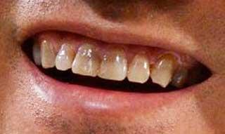 三木谷浩史 前歯の写真
