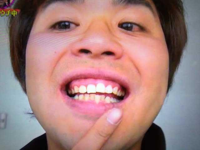 スパローズ森田の前歯治療