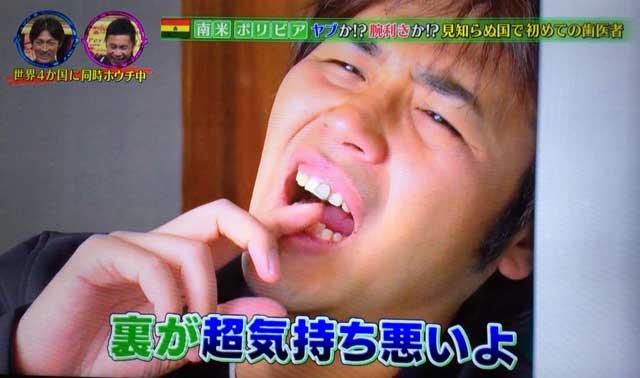 スパローズ森田 ボリビア歯科治療