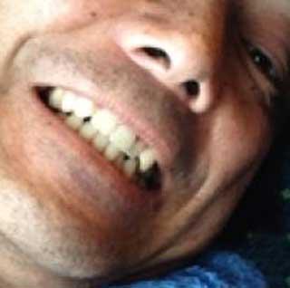 長江健次 前歯の写真