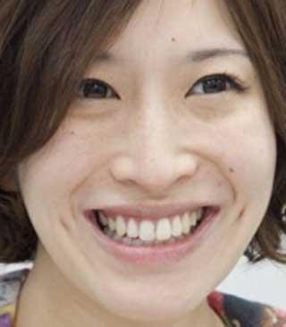 名塚佳織 歯