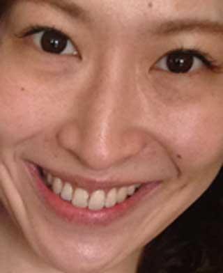 名塚佳織 前歯の写真