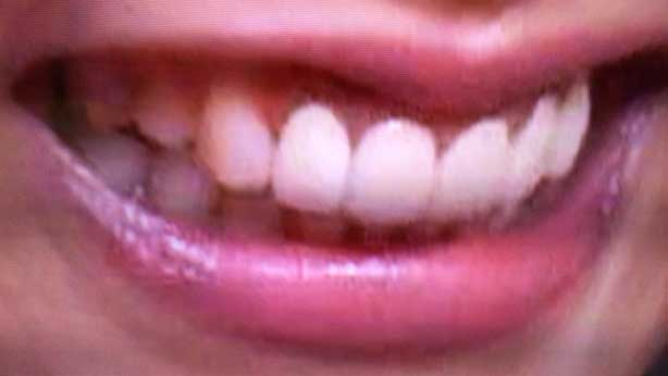 神咲りり 前歯の写真