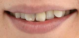 篠井英介 前歯の写真