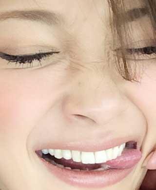 里海 前歯の写真