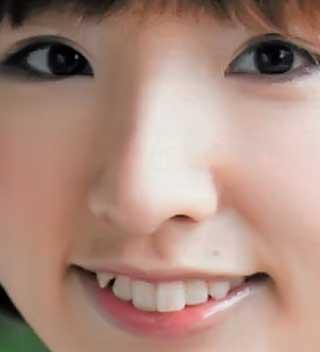 洲崎綾 前歯の写真