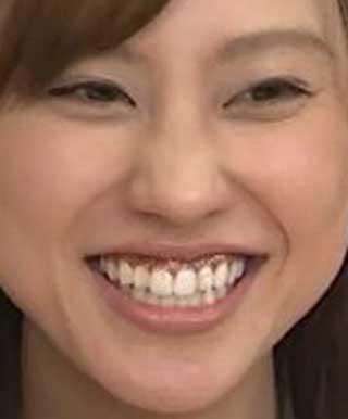 田岡咲香 黒い歯茎