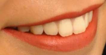 十枝梨菜 前歯の写真