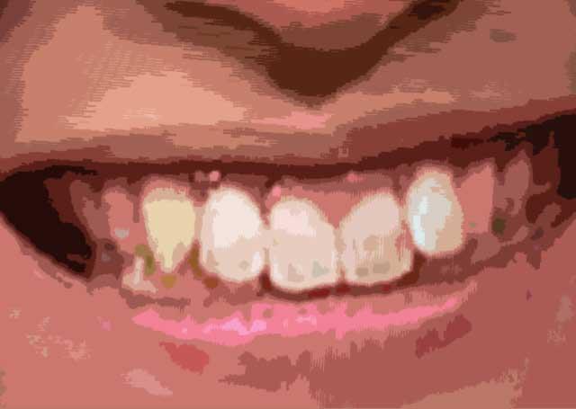塚田僚一 前歯の写真