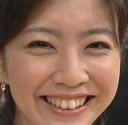 矢島悠子アナウンサー 歯