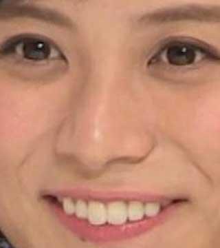 山本雪乃 前歯の写真