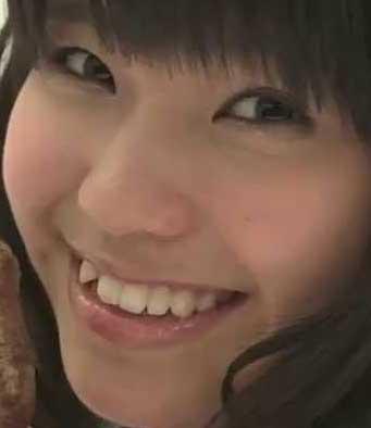 天野なつ 前歯の写真